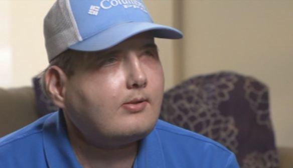 Greffe de visage : le témoignage d'un transplanté